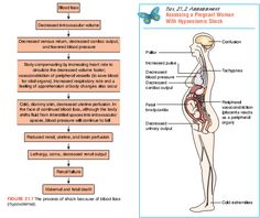 OB assessment of hypovolemic shock