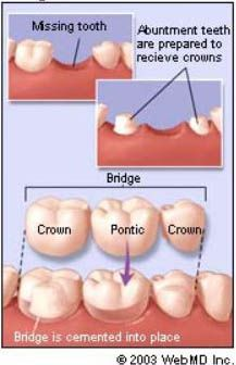What is a dental bridge ? Dental bridges are used to replace missing teeth. They are very similar in function to partial denture struct. Dental Facts, Dental Humor, Dental Hygienist, Dental Surgery, Dental Implants, Oral Health, Dental Health, Tooth Bridge, Dental Terminology