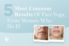 Read about the most common results of Face Yoga from women who do it and find out more about this great alternative to botox and other invasive procedures! Face Yoga Method, Face Yoga Exercises, Muscles Of The Face, Botox Alternative, Facial Yoga, Northwestern University, Band Aid, Yoga Videos, Free Training
