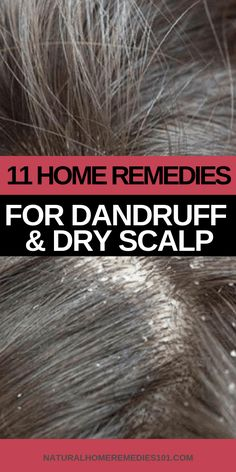 Below are 11 powerful home remedies for dandruff and dry scalp to help you get rid of your symptoms fast! These remedies can be used by men and women to remove dandruff and moisturize dry scalp quickly. home remedies for dandruff dry scalp Home Remedies For Dandruff, Hair Remedies, Natural Home Remedies, Herbal Remedies, Health Remedies, Natural Dry Scalp Remedy, Cold Remedies Fast, Hair Dandruff, Diet