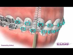 If you don't know what a Proxy Brush is, this little video shows it in action. Make it your best friend when you have braces!