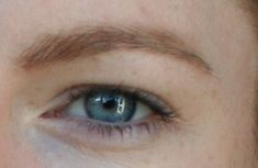 Most people have a crease on their eyelid at the top of their eyeball. This crease varies from person to person, but it generally follows the curve of the eyeball to either side. This is a normal e…