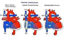Fontan procedure (to help with tricuspid atresia)