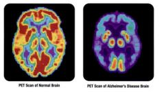 A recent study has shown how sleep allows the brain to export cerebral waste before it can accumulate and cause dementia and other illnesses. Now a team of researchers at Johns Hopkins have discovered that too little sleep or poor quality of sleep is linked to Alzheimer's disease and may even impact its progression.