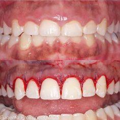 Se você acha que seus dentes são muito curtos, a cirurgia plástica periodontal pode alongar a parte visível de seus dentes e corrigir um sorriso gengival.