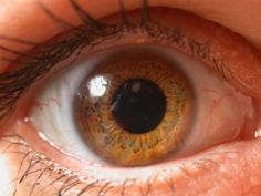Lucian's eye when the LV come