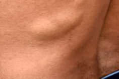 Pictures of Bumps on Skin: Cysts, Skin Tags, Lumps, and More Skin Bumps, Skin Tag, Skin Care Remedies, Skin Problems, Healthy Mind, Beauty Makeup, Tags, Pictures, Photos