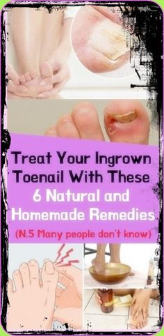 Treat Your Ingrown Toenail With These 6 Natural & Homemade Remedies #toenail Health And Fitness Tips, Health Tips, Artery Cleanse, Foods That Contain Calcium, Blood Pressure Chart, Ingrown Toe Nail, Glow Up Tips, Body Detox, Health Quotes