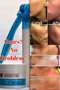 If you're hiding post acne, surgical or really any kind of scars, you can rest assured I have a solution!  Rodan + Fields newly patented AMP MD Micro-Exfoliating Roller and Redefine Night Renewing Serum are hard at work minimizing the appearance of scars!  Whether you have, or know someone who has texturized scars, brown scars, red or acne scars PM me now and let the AMP MD System start working on them!