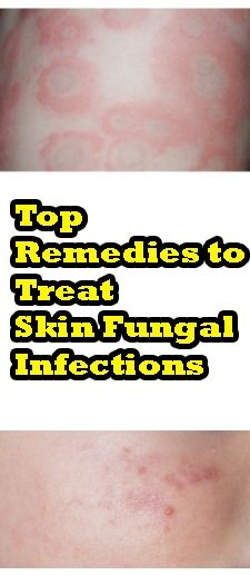 b69dc0982a838c6b4543d3b6cc5e2c5d - How To Get Rid Of Yeast Infection In Skin Folds