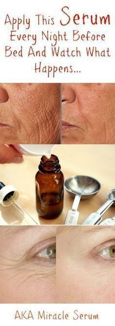 ANTI AGING CREAM FOR WRINKLES, CROW'S FEET, AND FINE LINES Preventing and getting rid of wrinkles is certainly no easy feat, but it IS definitely possible! Expensive creams and serums will only break your bank, but this DIY anti aging cream will ensure your wallet stays nice and fat, while your wrinkles, crow's feet, and fine lines diminish right before your eyes! We've found an amazing combination of all natural oils that, when used together, create the u #IngrownHairRemedies Anti Aging Creme, Anti Aging Facial, Anti Aging Tips, Best Anti Aging, Anti Aging Skin Care, Aging Cream, Facial Wash, Facial Diy, Anti Aging Treatments
