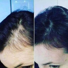 Beautifully Nu by Alana Hair Scalp, Hair Serum, Hair System, Shampoo And Conditioner, Hairline, Smudging, Whitening, New Hair, Anti Aging
