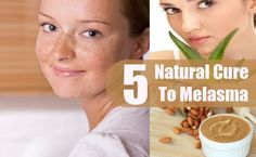 Natural Cure To Melasma