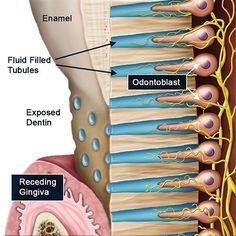 Top 4 Gum Diseases Symptoms 1 Red Swollen Or Tender