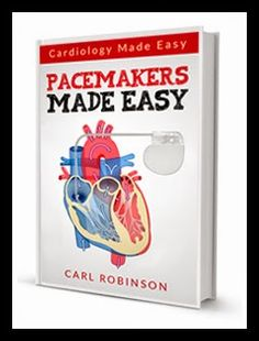 Heart Pacemaker Explained Book