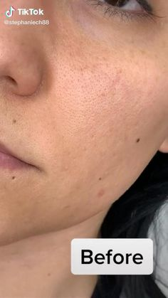 acne on chin remedies / acne on chin - acne on chin meaning - acne on chin remedies - acne on chin face mapping - acne on chin and jawline - acne on chin and neck - acne on chin how to get rid of Beauty Tips For Glowing Skin, Clear Skin Tips, Clear Skin Routine, Beauty Care Routine, Beauty Hacks, Beauty Routines, Beauty Secrets, Gesicht Mapping, Haut Routine