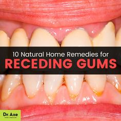 Receding gums - Dr. Axe http://www.draxe.com #health #holistic #natural #diy