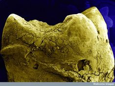 Microscopic tooth
