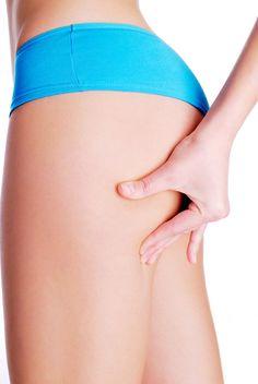 Ciało bez cellulitu i rozstępów. #slimming, #cellulit, #natural cosmetics, #cosmetics, #vivetia, #polska, #poland, #polskie, #polish, #body