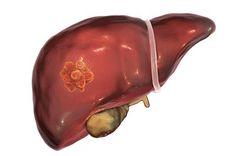 Liver Cancer, Healthy Liver, Healthy Drinks, Skin Care, Fruit, Illustration, Food, Hacks, Skincare Routine