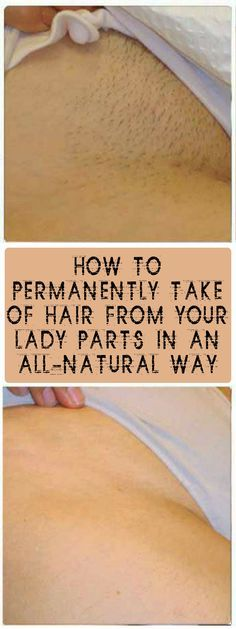 AMAZING TIP! TAKE A LOOK AT HOW TO PERMANENTLY TAKE OFF HAIR FROM YOUR LADY PARTS IN AN ALL-NATURAL WAY JUST BY APPLYING THIS HOMEMADE MIXTURE #fitness #beauty #hair #workout #health #diy #skin