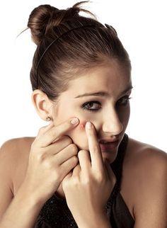 Feirinha Chic : Acne - Tipos e dicas de tratamentos