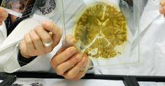 Aktuell! Nicht Honig im Kopf sondern Fett  - Ist ein gestörter Fettabbau schuld? Forscher untersuchen neuen Auslöser für Demenz - http://ift.tt/2r9VgOT #aktuell