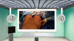 Para lograr una figura mas curveada la transferencia de grasa es la cirugía que puede realizar esto. En este video, el Dr. Cortes explica el procedimiento de transferencia de grasa a las caderas. El Dr. Cortes es un cirujano plástico certificado y practica en Houston. Para mas información, visite nuestra pagina web http://www.miscurvaslatinas.com y http://www.rejuvenusaesthetics.com