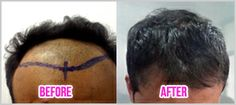 Hair transplantation in Bangalore.. http://www.thenewyouclinic.com/