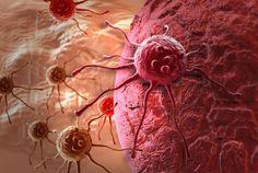 Terapia naturala pentru tratarea cancerului si a altor boli grave – Dr. Max Gerson ‹ Dezvoltare personala si spiritualitate!