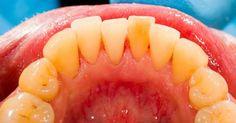 """Ir Al Dentista Es """"Imprescindible"""" Cuando Se Trata De Eliminar La Placa, Pero Sabías Que ..."""