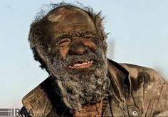 Image result for homeless beards