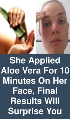 She applied aloe vera for 10 minutes on her face, final results will surprise you – Myjoy Collections – beauty skin care Aloe Vera Hair Growth, Aloe Vera For Hair, Skin Care Regimen, Skin Care Tips, Nutrition Articles, Nutrition Websites, Nutrition Guide, Aloe Leaf, Moisturizer With Spf
