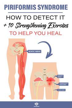 Piriformis Syndrome Symptoms, Piriformis Exercises, Hip Strengthening Exercises, Lower Back Pain Exercises, Piriformis Syndrome Treatment, Sciatica Stretches, Periformis Syndrome, Sciatic Pain, Sciatic Nerve