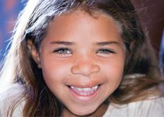 Danila was born beautiful and perfect - except for a jagged tear in her upper lip that became the central focus of her life. http://www.operationsmile.org/living_proof/patient-stories/danila.html