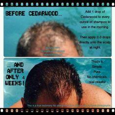 Hair Growth Protocol