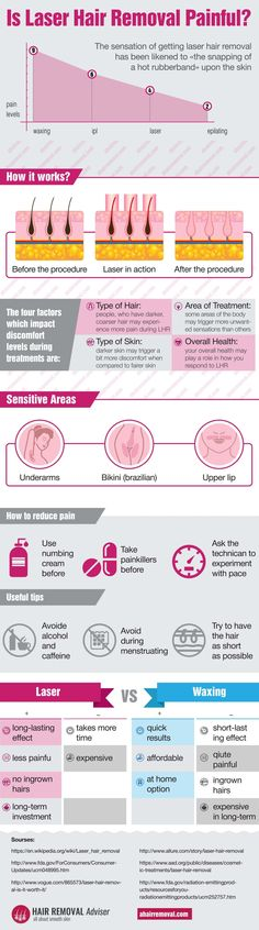 Does Laser Hair Removal Hurt? - Infografic, Tips and FAQ