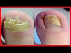 COMO MATAR OS FUNGOS DA UNHA em 1 Minuto Sem Gastar 1 Centavo! As infecções por fungos que afetam as unhas dos pés e das mãos são conhecidas em termos médicos como onicomicose, condição que pode provocar a descoloração, descamação e enfra