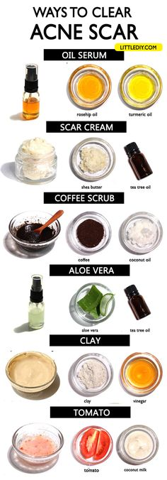 Acne is one of the most common skin issues and if not always, they mostly leave behind scars. If you have acne-prone skin, you probably also have acne scarring. Looking out for remedies to…More Natural Acne Treatment, Natural Acne Remedies, Cold Home Remedies, Herbal Remedies, Scar Remedies, Natural Cures, Health Remedies, Turmeric Essential Oil, Turmeric Oil