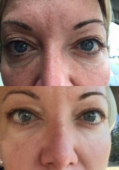 Incredible results from the newly released Arbonne RE9 Advanced Lifting and Contouring Eye Cream!!!