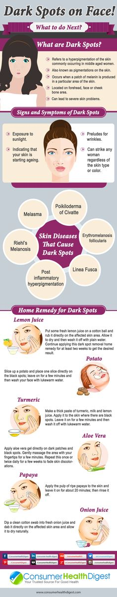 Dark Spots on Face: Causes and Treatments! More info on: https://www.consumerhealthdigest.com/skin-care/dark-spots-on-face.html