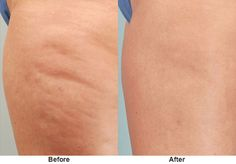 Cellulaze treatment on outer thighs