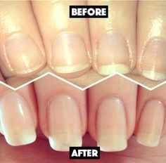 This 3-Ingredient DIY Nail Soak Miraculously Rejuvenates your Nails and Boosts their Growth!