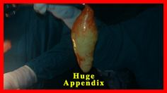 Appendectomy Surgical Procedure for Appendix Removal