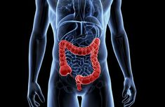 Inflammatory bowel syndrome (IBS) is the name of a group of disorders in which the large intestine (colon) becomes inflamed. Inflammatory Bowel Syndrome, Leaky Gut Syndrome, Kidney Disease, Crohn's Disease, Kidney Failure, Kidney Dialysis, Kidney Infection, Disease Symptoms, Diverticulitis