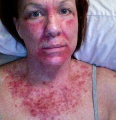 Efudex, Chemotherapy for skin cancer, Day 17