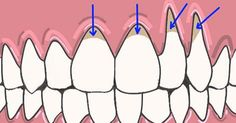 Gingivitis is an issue which can be manifested by bad breath, and swollen or red gums. If you don't treat it, it can progress to periodontitis.