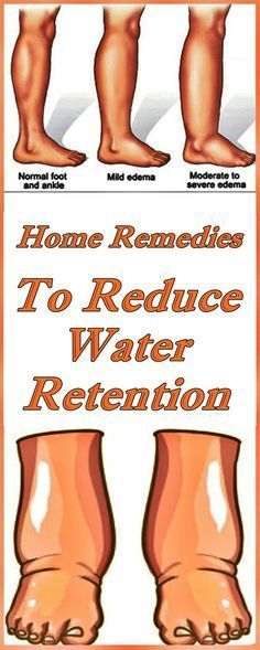 Holistic Remedies 10 Home Remedies To Reduce Water Retention Edema is swelling caused by excessive fluids accumulated in your body's tissues. Even though edema can affect any part of your body, it usually occurs in the legs, feet and the torso. Foot Remedies, Health Remedies, Herbal Remedies, Holistic Remedies, Reduce Weight, Lose Weight, Weight Loss, Health And Fitness Tips, Health Advice