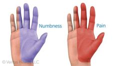 Carpal tunnel syndrome results in numbness and weakness in the hand and wrist. Read more about the symptoms, causes, and treatment of carpal tunnel.