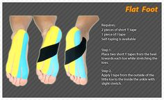 ares kinesio taping method on flat foot_kt tape Foot Exercises, Posture Exercises, K Tape, Morton's Neuroma, Sports Therapy, Ankle Pain, Kinesiology Taping, Flat Feet, Physical Therapy